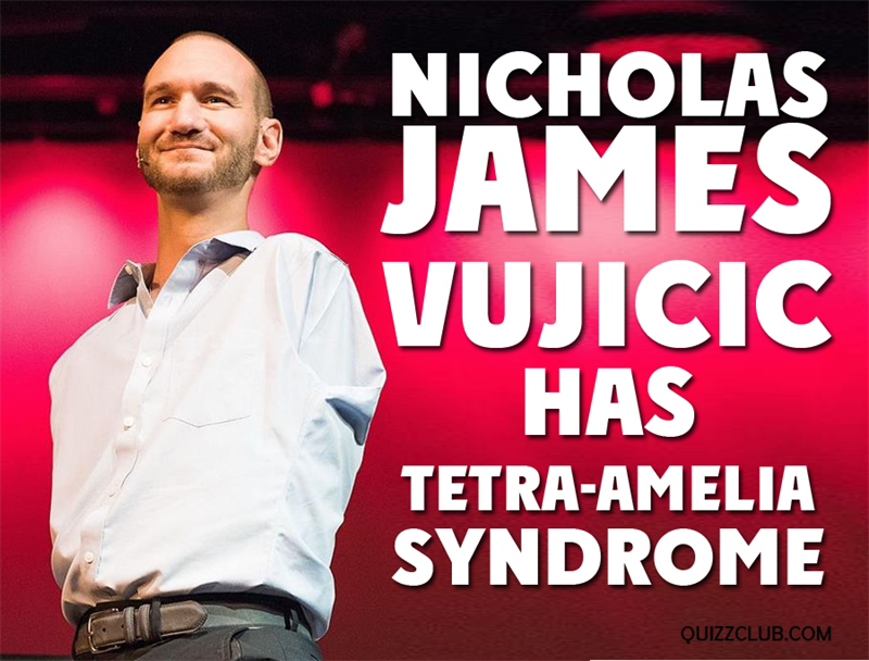 "Society Story: Nicholas James Vujicic has ""tetra-amelia syndrome"""