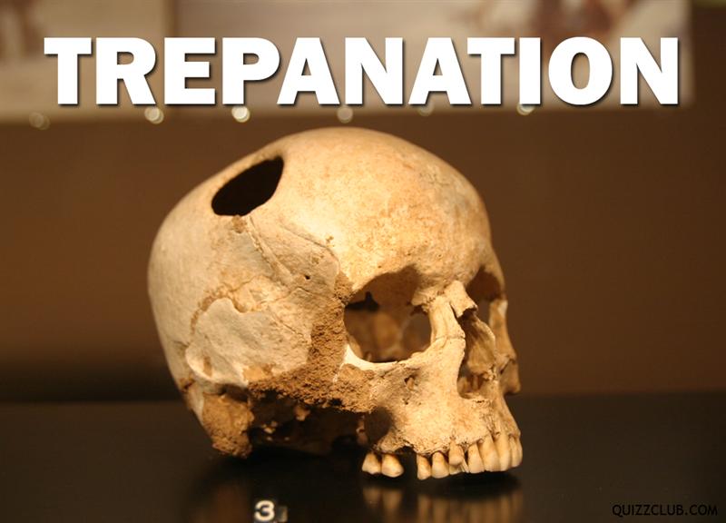 History Story: Trepanation