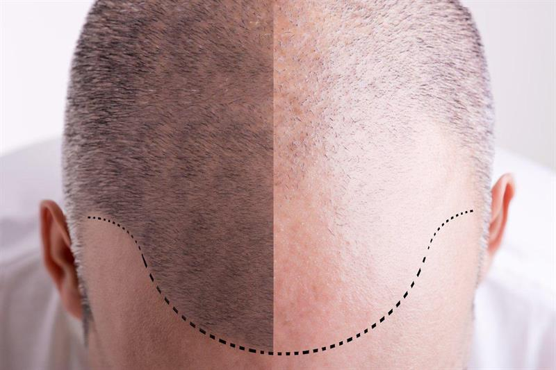 Science Story: #2 Men's hair loss is inherited from their mothers