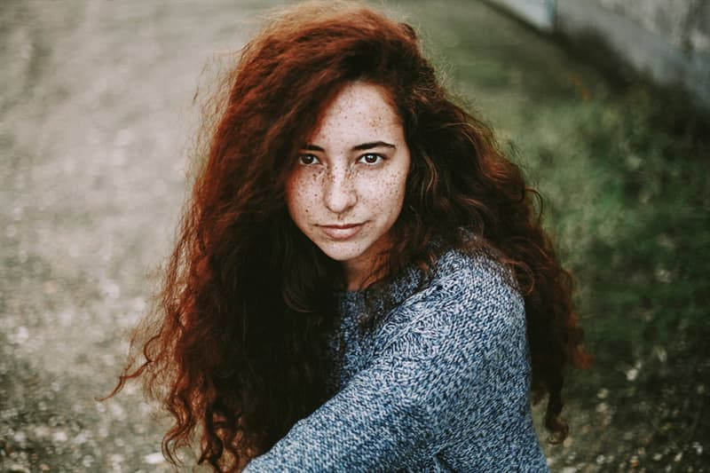 Personality Story: Are you kissed by the sun? The whole truth about freckles #1