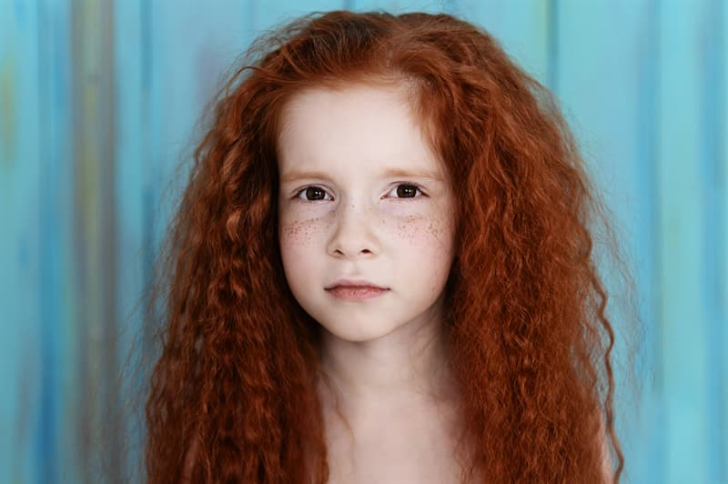Personality Story: Are you kissed by the sun? The whole truth about freckles #6