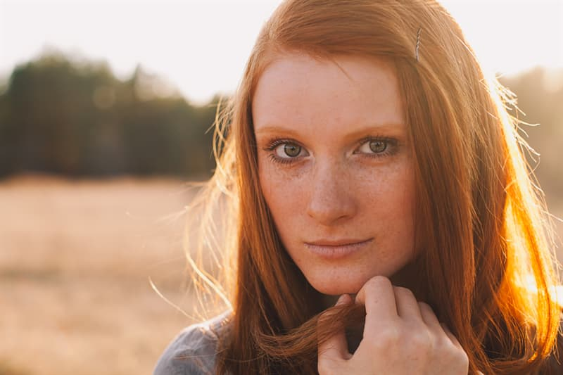 Personality Story: Are you kissed by the sun? The whole truth about freckles #9