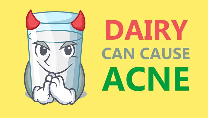 Culture Story: Dairy can cause acne