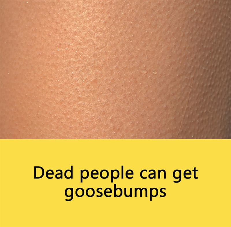 Science Story: Dead people can get goosebumps.