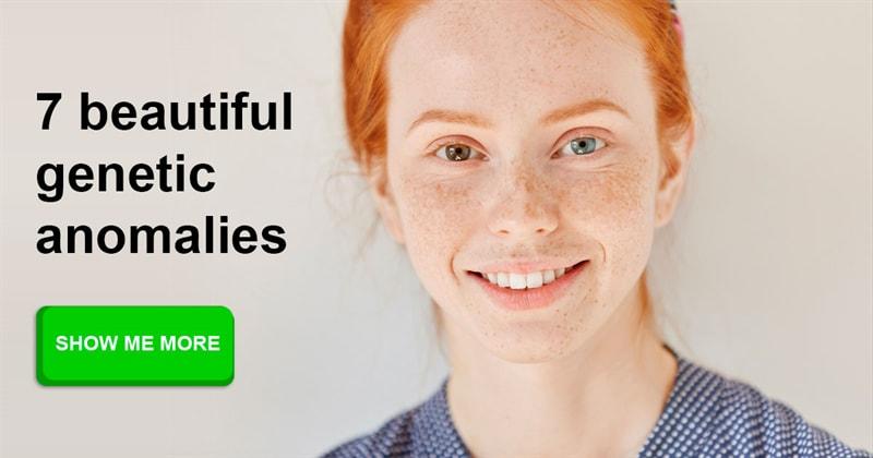 Science Story: 7 beautiful genetic anomalies