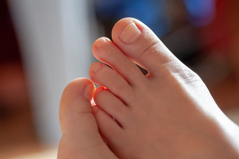 History Story: #1 The big toe is the longest