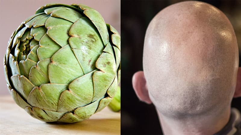 Science Story: #1 Artichokes curing baldness