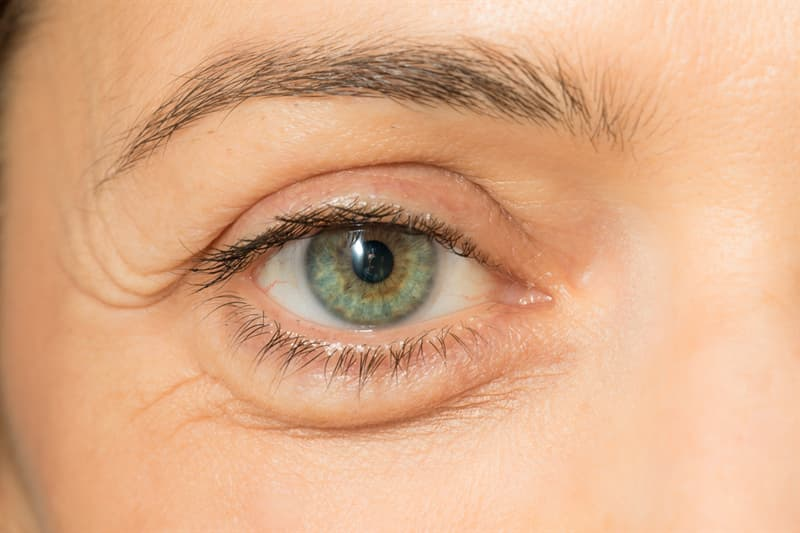 Science Story: #4 Puffy eyes can signal a need for movement