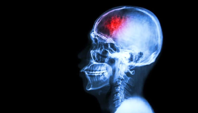 Science Trivia Question: What does CTE stand for in Medicine?