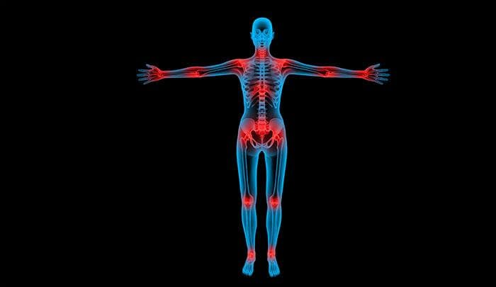 Science Trivia Question: What is the meaning of the word orthopaedics in latin?