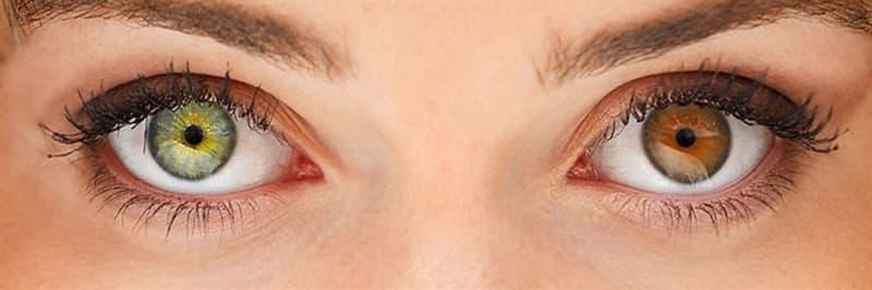 Wissenschaft Wissensfrage: Mit welchem Bgriff bezeichnet man die Verschiedenheit beider Regenbogenhäute der Augen?