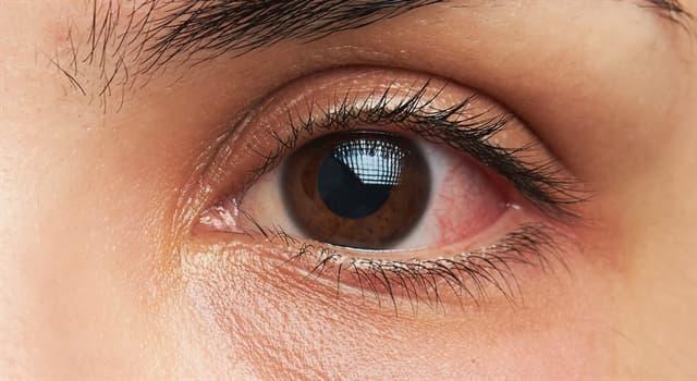 Наука Запитання-цікавинка: Головним симптомом якої хвороби є почервоніння білків очей?