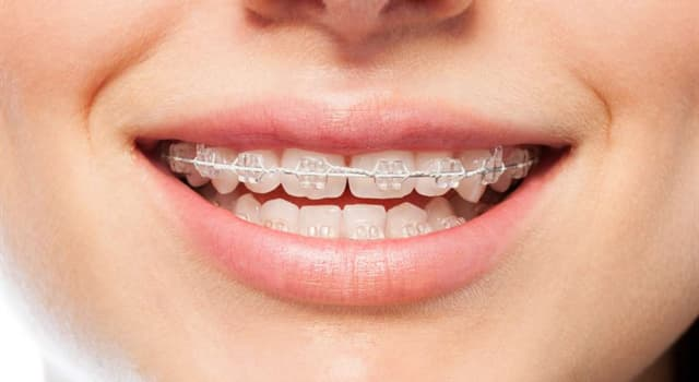 Science Trivia Question: Which two bones form the upper jaw and palate of the mouth?