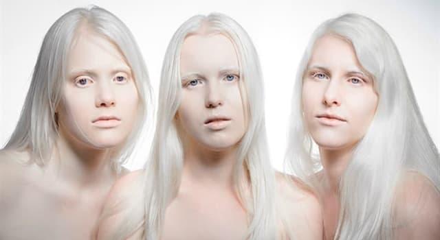nauka Pytanie-Ciekawostka: Jak nazywa się osoba nie mająca pigmentu w skórze?