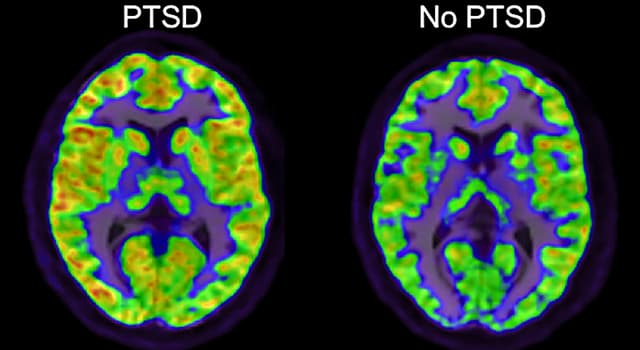 Science Trivia Question: Which symptom is associated with post traumatic stress disorder (PTSD)?