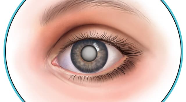 Наука Запитання-цікавинка: Як називається патологічний стан, пов'язаний з помутнінням кришталика ока?