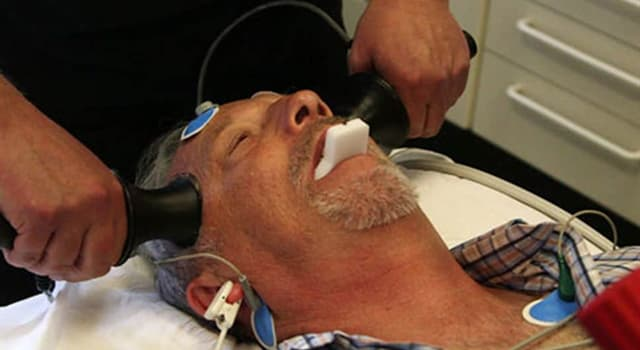 Science Trivia Question: What condition is Electroconvulsive Therapy (ECT) generally used for?