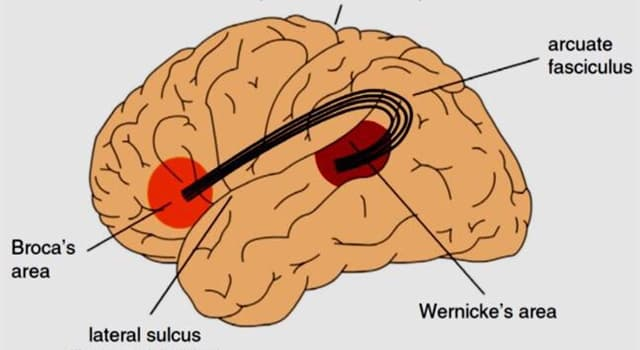 Science Trivia Question: What are the causes of aphasia?