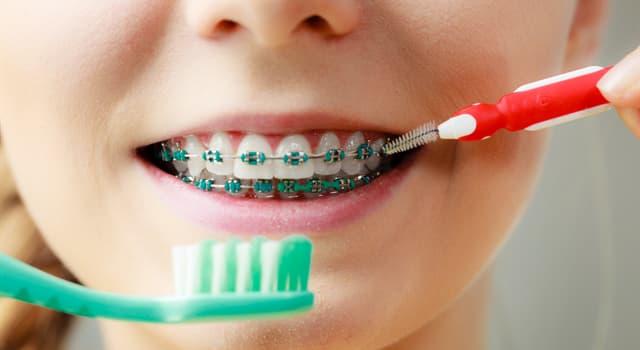 Наука Запитання-цікавинка: Який лікар спеціалізується на зубощелепних аномаліях?