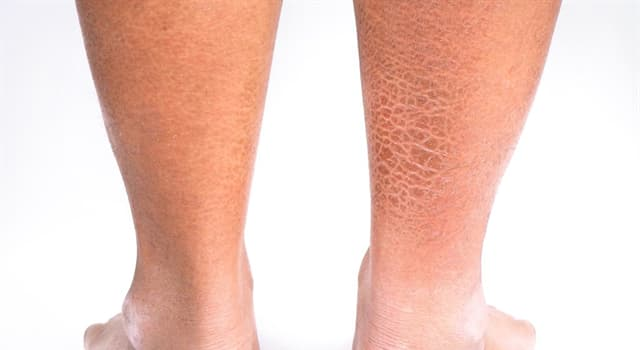 Сiencia Pregunta Trivia: ¿Cuál es el nombre del trastorno de la piel que causa piel seca y escamosa?