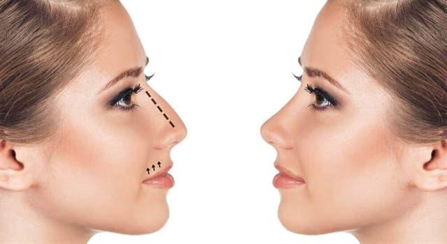 Сiencia Pregunta Trivia: ¿Cuál es un procedimiento quirúrgico en el que se modifica o reconstruye la forma de la nariz?