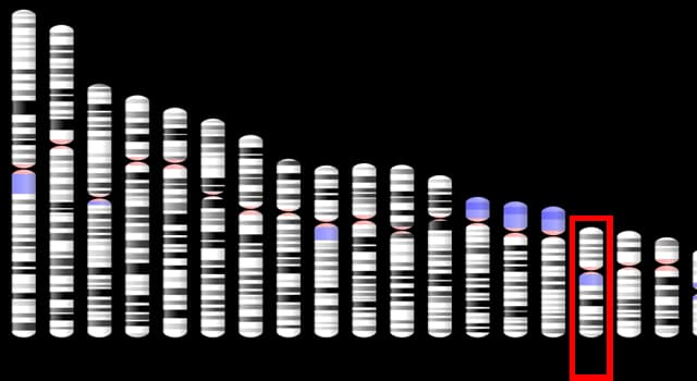 Сiencia Pregunta Trivia: ¿Con qué está asociado una variante genética en el gen MC1R?