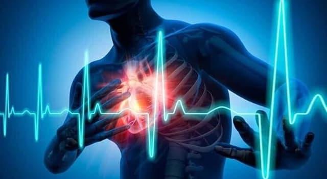 Сiencia Pregunta Trivia: ¿Cuál es la causa más frecuente de enfermedad coronaria?