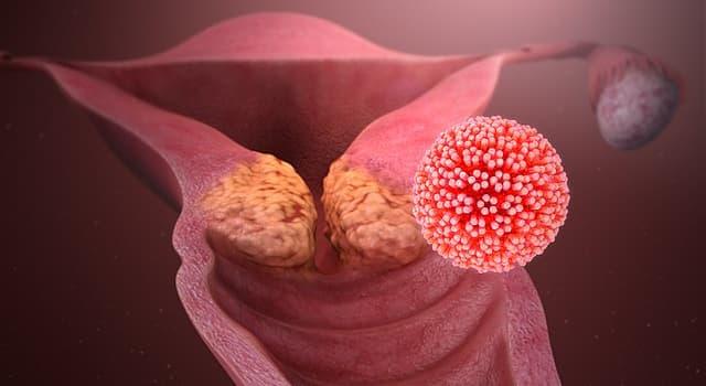 Сiencia Pregunta Trivia: ¿Qué virus es un habitual causante de cáncer de cuello uterino?