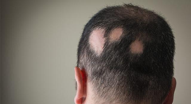Сiencia Pregunta Trivia: ¿Cuál es el término médico para la pérdida de pelo en una zona focalizada del cuerpo?