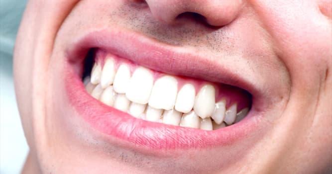 Сiencia Pregunta Trivia: ¿Qué tipo de diente brota generalmente entre finales de la adolescencia y el comienzo de los veinte?