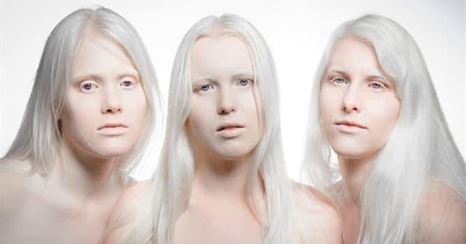Wissenschaft Wissensfrage: Wie bezeichnet man eine Erkrankung, bei der es kein oder kaum Melanin gibt, das Haut und Haare färbt?