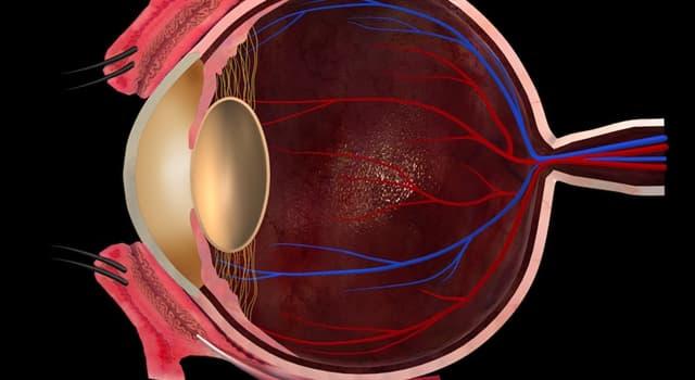 Сiencia Pregunta Trivia: ¿Cuál de estas patologías no está relacionada con la córnea del ojo?