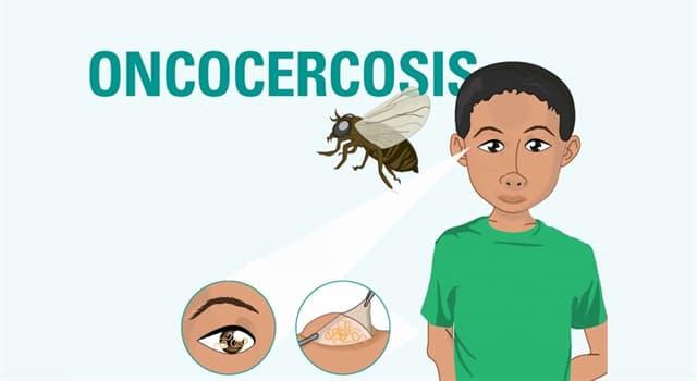 """Сiencia Pregunta Trivia: ¿Qué tipo de gusano es el causante de la enfermedad llamada """"Oncocercosis""""?"""