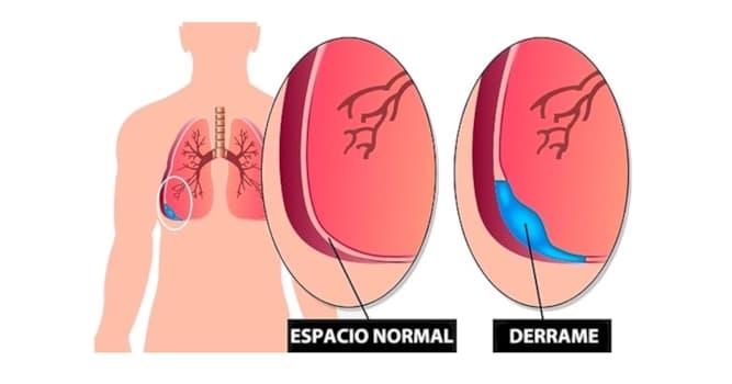 Сiencia Pregunta Trivia: ¿Cómo se llama el líquido contenido en el interior de la doble membrana que recubre a los pulmones?