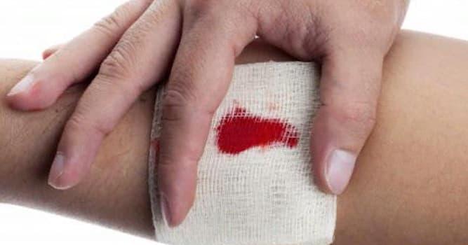 Наука Вопрос: Какого вида кровотечения не существует?