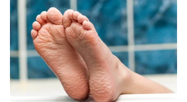 """Science Trivia Question: Scientists believe our fingers and toes get """"wrinkly when wet"""" for which of the following reasons?"""